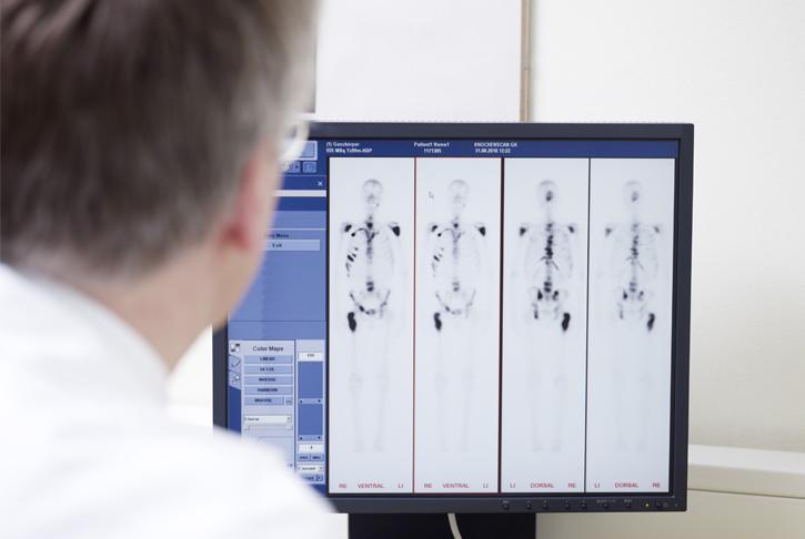 Arzt betrachtet Bilder aus der bildgebenden Diagnostik